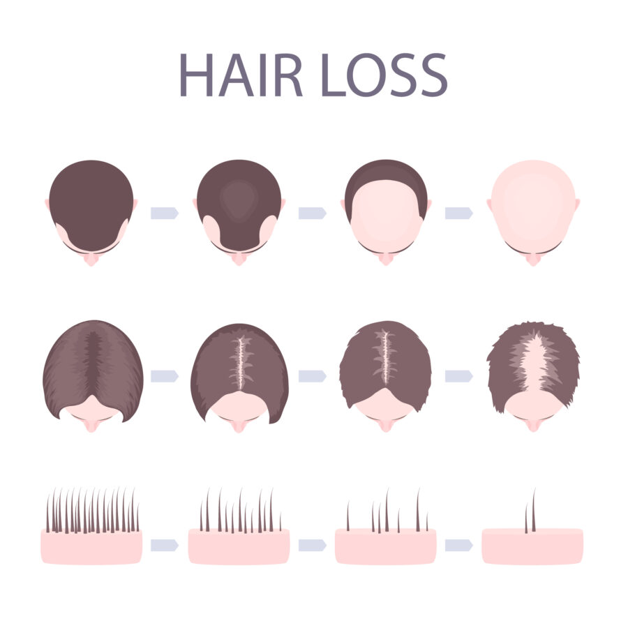 Hair loss prevention graphic - best hair care products -